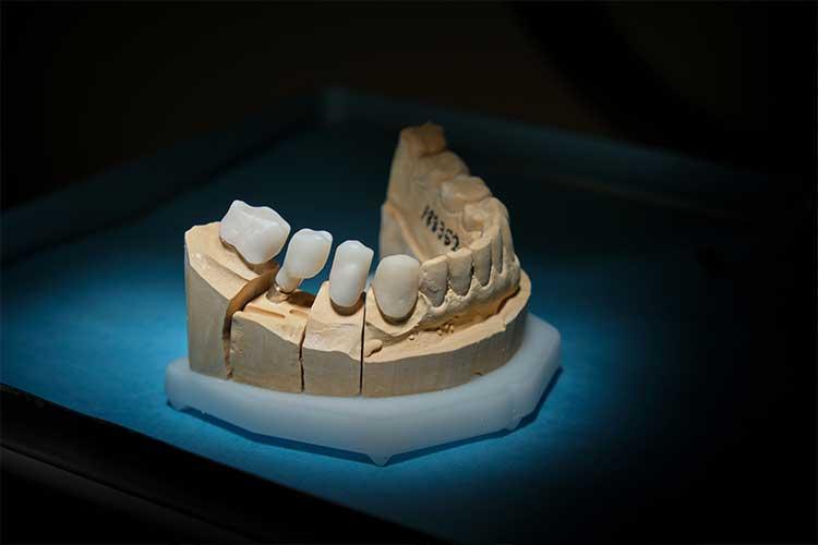 İmplant Diş Özellikleri